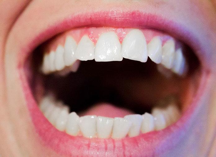 Stosowanie nici dentystycznej - wymysł czy obowiązek